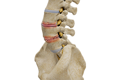 Degenerative Disc, Discogenic pain, Surgical Treatment options (Fusion surgery)