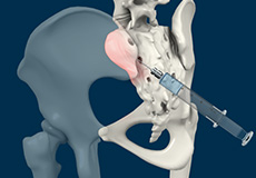 Sacro-iliac Joint Injection